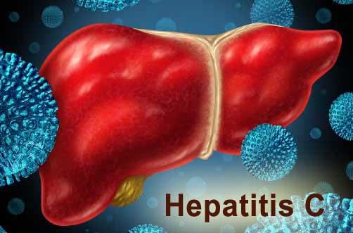 Hepatitis C virus